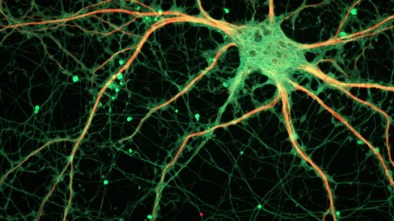 Untangling Neurons: Xona Microfluidics